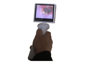 3.5 Inch LCD Screen Digital ENT Scope ENT Camera Video Camera for Ear Nose Throat with Lithium Battery
