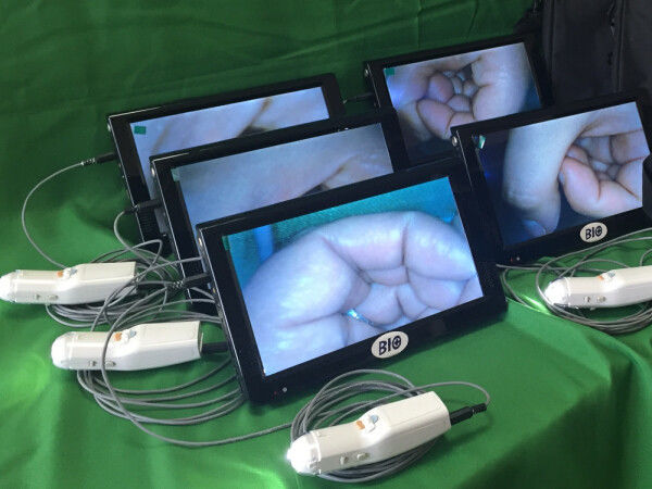 Vaginal Videoscope Digital Video Colposcope Connected to Computer / TV with 3 Million Pixels to Take Photo for Cervix