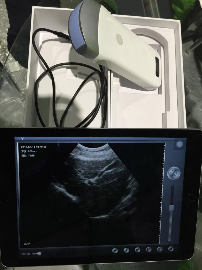 Wireless Array Portable Ultrasound Scanner Integrated Diagnostic