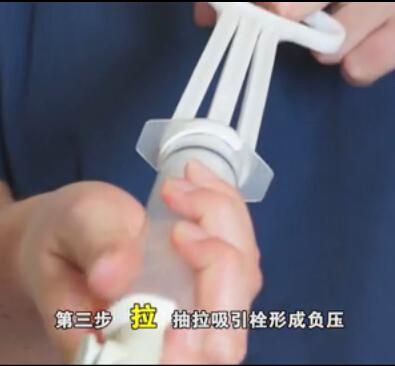 Manual Vacuum Aspiration To Empty Uterus Using A Manual