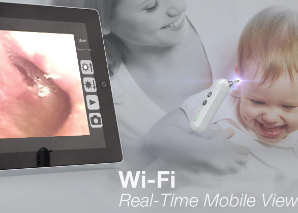 Microscope Use Baby Care Wifi Scope Digital Video Otoscope for ENT with One touch Switch