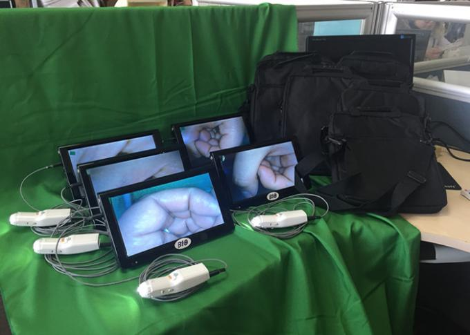 Self - Inspection Tool for Cervical Examination Digital Electronic Colposcope Applicable Individual Clinic and Hospital