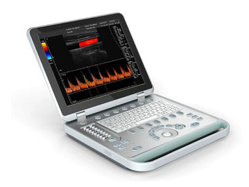 Portable Notebook Color Doppler Machine With Large Volume Hardisk and Laptop Appearance