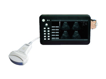 Human use Handheld Palm Ultrasound Scanner Ultrasonic Diagnostic Machine with 7 Inch Screen  1 Probe Connector