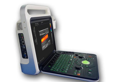 China Ultrasound Imaging Machine Portable Ultrasound Scanner with 160G Capacity factory
