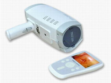 China Lens Resolution 800000 Pixels Digital Electronic Colposcope With Automatic Electronic Shutter 3.5 Inch Handheld Screen factory